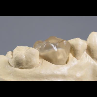 Vita suprinity Zircon Dent